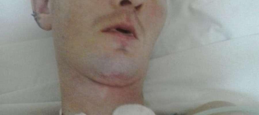 Kazimierz Pepel w szpitalu w Żurominie, dziś jest w stanie bardzo ciężkim