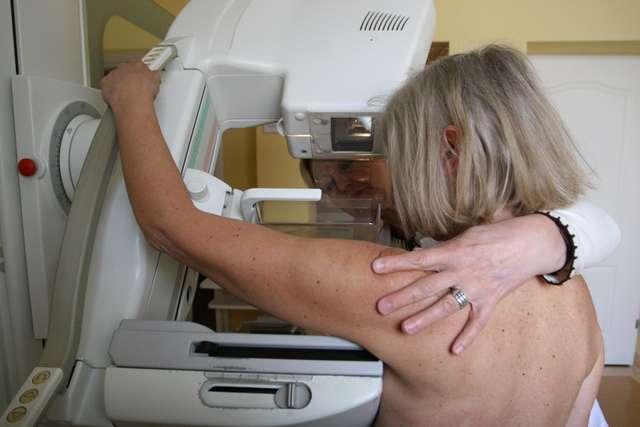 Mammografia jest jednym z niezbędnych elementów profilaktyki nowotworowej. Kobiety po 40. roku życia powinny ją wykonywać raz w roku, a decyzję o pierwszym takim badaniu podejmuje lekarz - full image