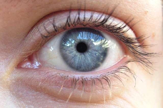 Zwyrodnienie oka, które może prowadzić nawet do ślepoty - full image