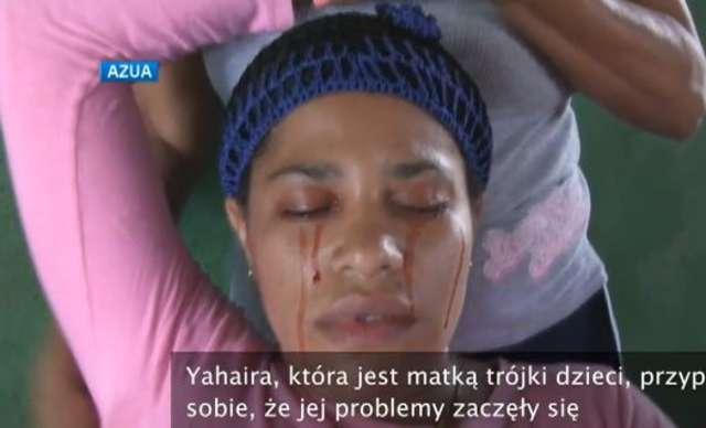 Kobieta z Dominikany płacze krwawymi łzami - full image