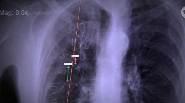 Podjęli się innowacyjnego leczenia rozedmy płuc - full image