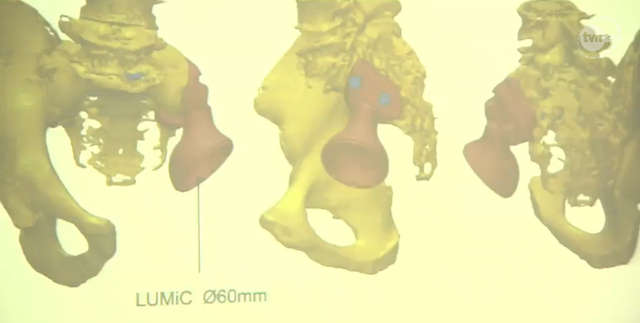 Ortopedzi wszczepili protezę 3D. Innowacyjna operacja w Poznaniu - full image