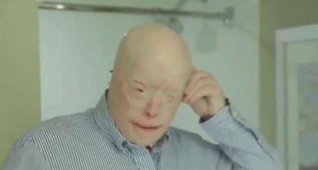 Dostał nową twarz i drugie życie. W USA przeprowadzono najbardziej złożony przeszczep - full image