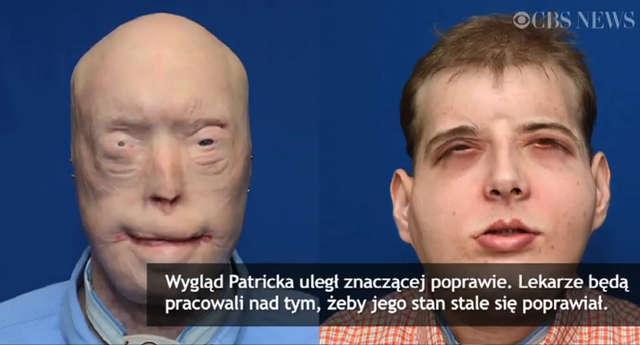 Dostał nową twarz i drugie życie. Lekarze przeprowadzili bardzo złożony przeszczep - full image