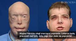 Dostał nową twarz i drugie życie. Lekarze przeprowadzili bardzo złożony przeszczep
