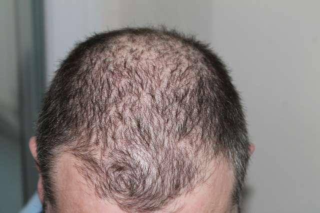 Zadbaj o włosy zanim wypadną - full image