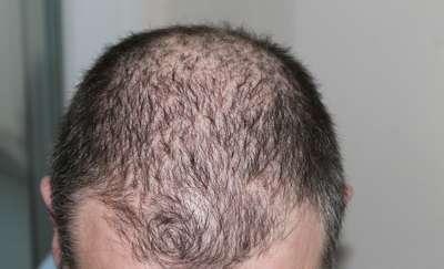 Zadbaj o włosy zanim wypadną