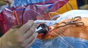 Operacje w Olsztynie zakończone sukcesem. Impuls ma pomóc wybudzić pacjentów