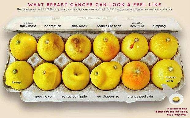 Poznaj swoje cytryny! Ciekawa akcja poświęcona rakowi piersi - full image