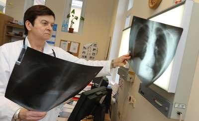 Zarejestrowano ponad 2000 przypadków chorób płuc wywołanych przez palenie e-papierosów. Co najmniej 40 pacjentów zmarło