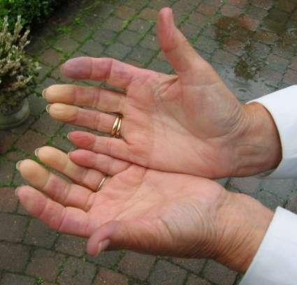 Blade palce u osoby chorej na chorobę Raynauda - full image