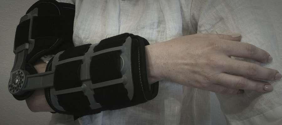 Gosia Lorkowska nie może wykonać najprostszych czynności, trzy palce lewej dłoni są bez czucia (zdjęcie jest lustrzanym odbiciem)
