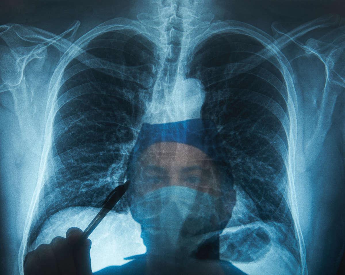 W Polsce co 20 minut ktoś umiera na raka płuca. Szybka diagnostyka i leczenie mogłyby poprawić te statystyki - full image