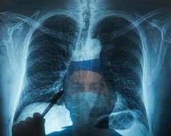 W Polsce co 20 minut ktoś umiera na raka płuca. Szybka diagnostyka i leczenie mogłyby poprawić te statystyki