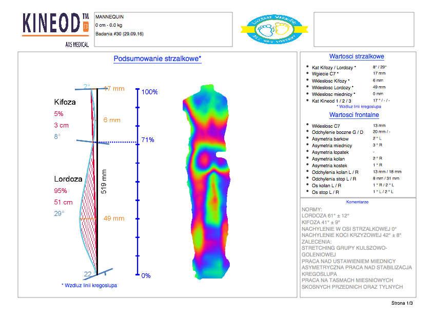 Przykładowy opis stanu kręgosłupa przez urządzenie kineod
