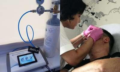 Karboksyterapia, czyli terapia dwutlenkiem węgla