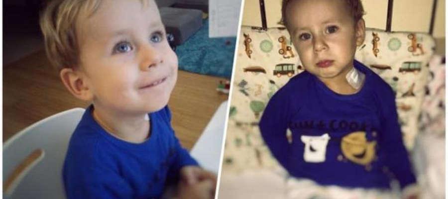 Wojtuś Runke z Olsztyna ma 2 latka. Bardzo potrzebuje pomocy