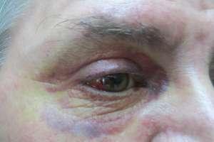 Ofiara pobicia w centrum Bartoszyc: bałem się, że nas zabiją