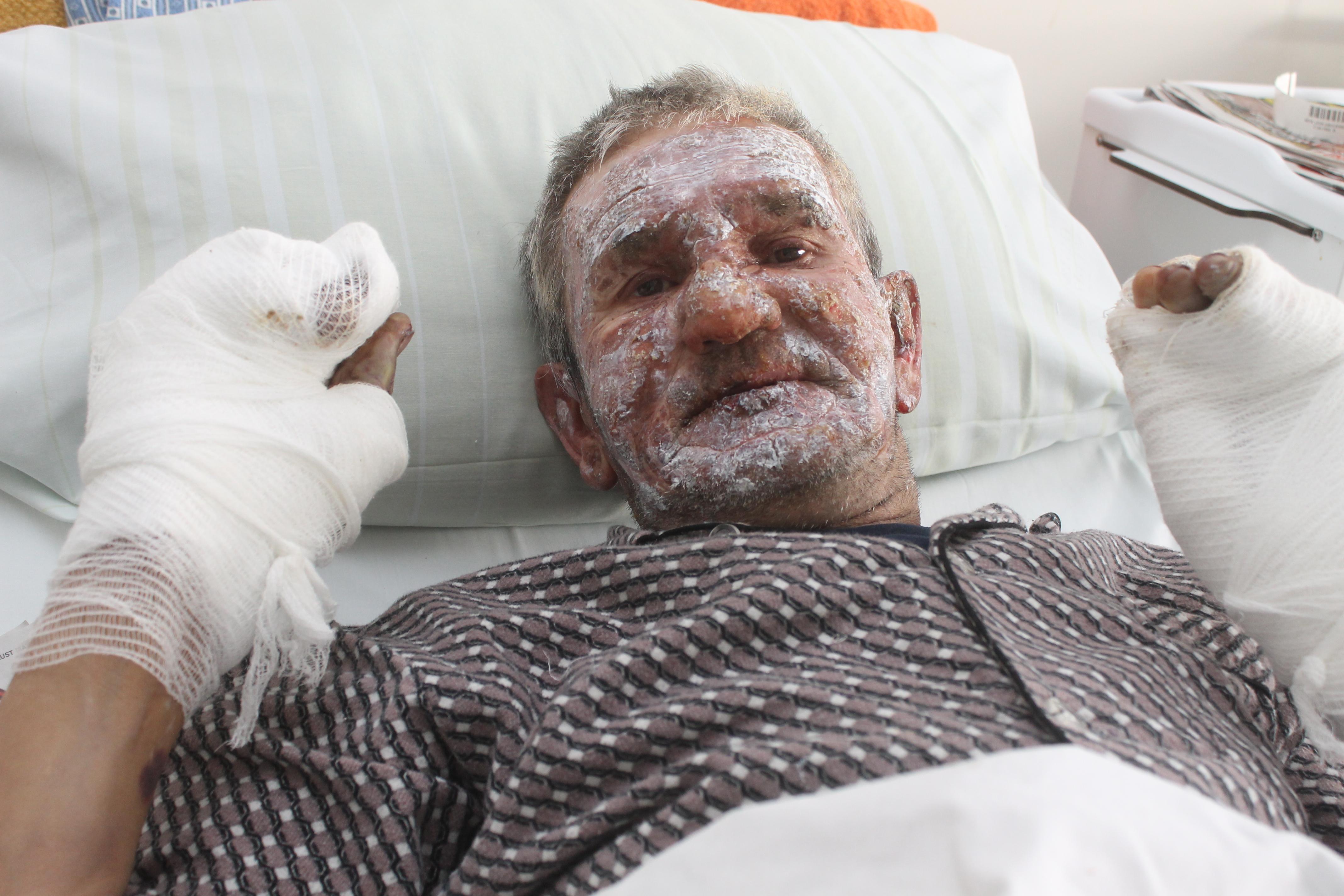 Pan Leon Abucewicz w wyniku wybuchu gazu doznał oparzeń twarzy, przedramion i dłoni.