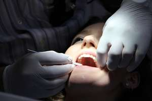 Policja przygląda się olsztyńskim stomatologom. Leczyli tak, że końca nie widać