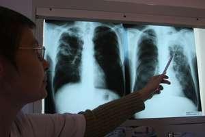 Gruźlica wciąż atakuje. W Polsce z powodu gruźlicy umiera ok. 1000 osób rocznie