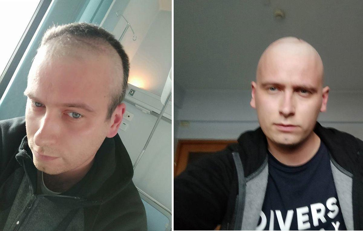 Po radioterapii Krystianowi wypadały włosy więc ogolił głowę.