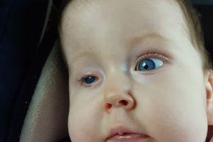 Maleńka Alicja może mieć nowe oczko, ale potrzebuje pomocy!
