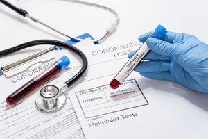 Kolejna osoba zakażona koronawirusem zmarła