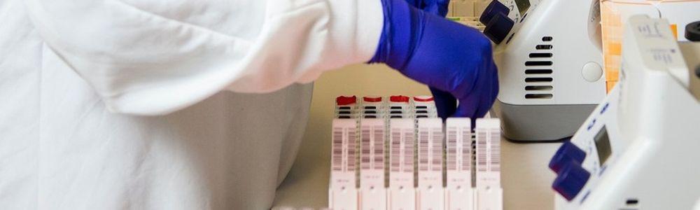 Szybkie testy na COVID 19 w Biedronce! CENA przystępna