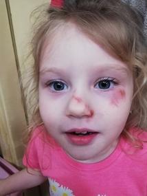 Córka pani Sabiny bardzo przeżyła upadek na chodniku
